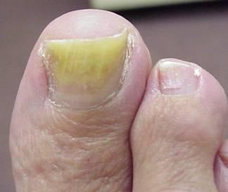 Pour venir à bout des ongles de pied jaune (causés par la mycose)