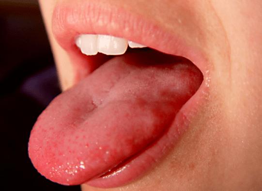 boutons-blancs-sur-la-langue