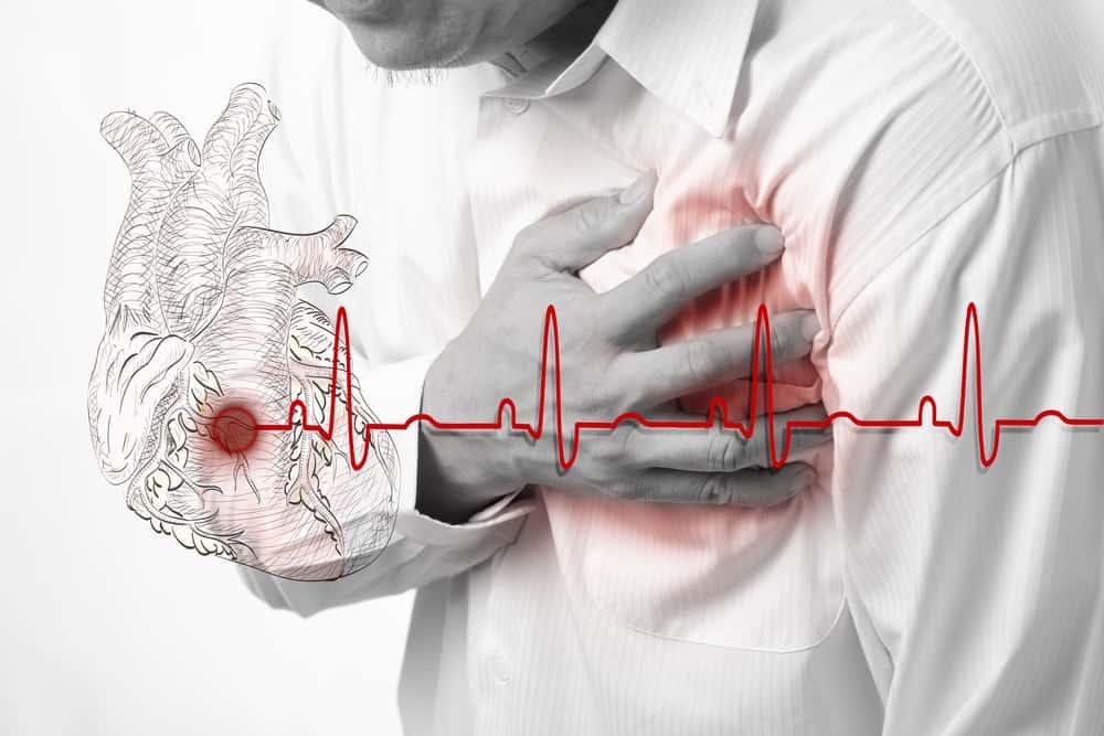 Crise cardiaque-signe-