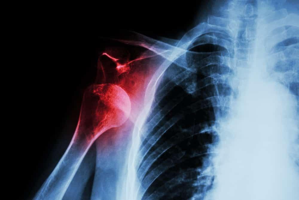 Douleurs a lepaule-multiples causes
