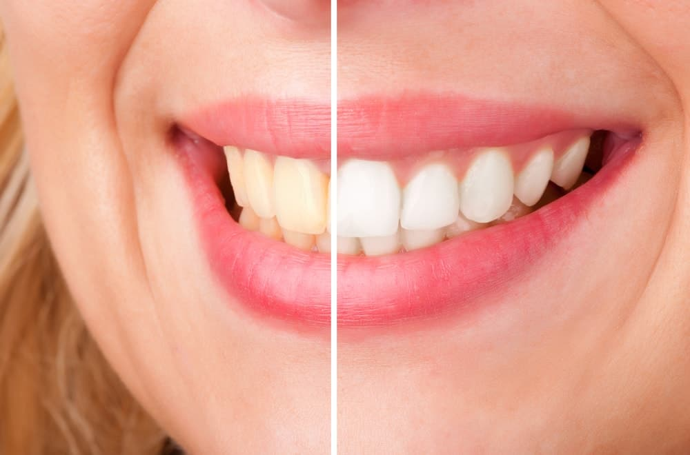 les 8 meilleures astuces pour avoir des dents blanches bonheur et sant. Black Bedroom Furniture Sets. Home Design Ideas